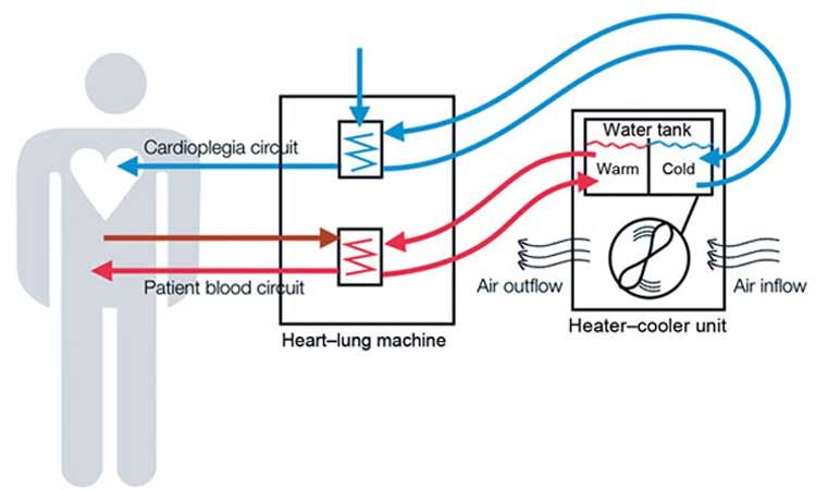 Diagram showing how heatercooler devices used during lung