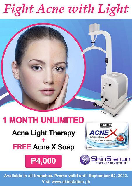 Adult acne home treatment