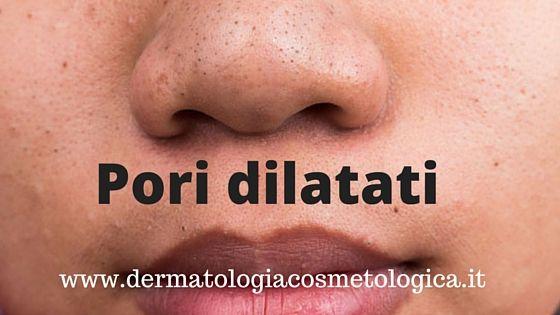 Pori dilatati sul viso I pori dilatati sono una caratteristica normale della pelle grassa.…