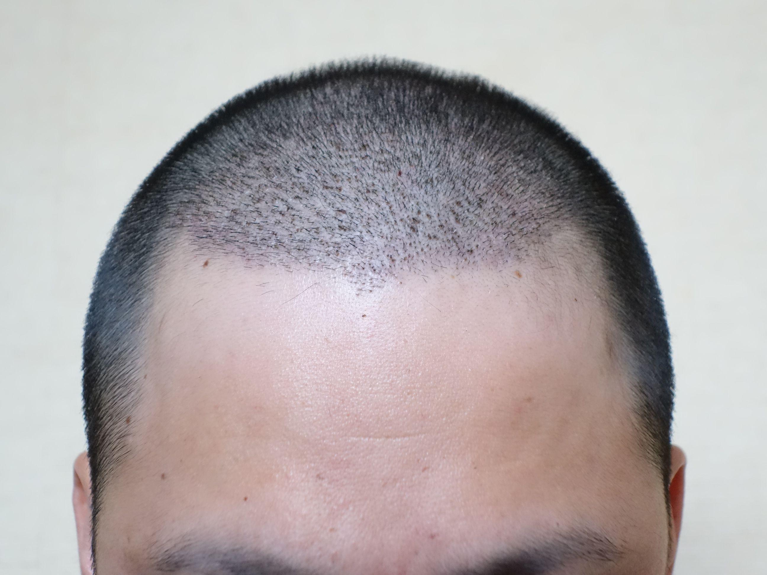 痒み 後頭部
