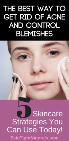 The Best Way To Get Rid Of Acne And Control Blemishes https://victoriasbodyshoppe.com/blogs/news/the-best-way-to-get-rid-of-acne-and-control-blemishes