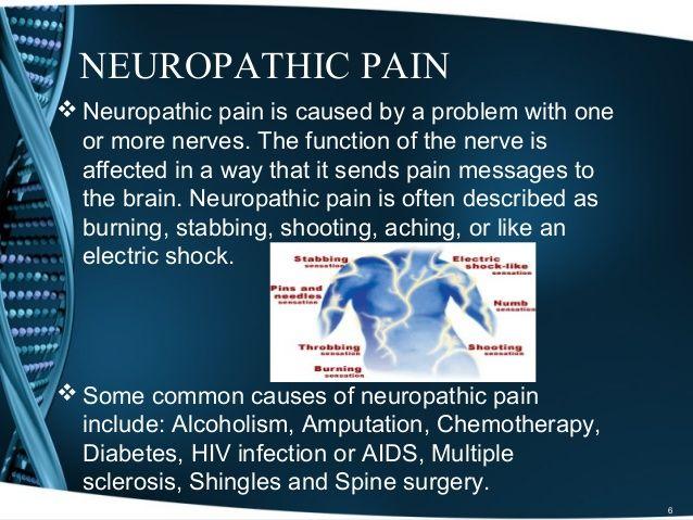 Neuropathic Pain Treatment Options – Part 1 | NEUROPATHIC