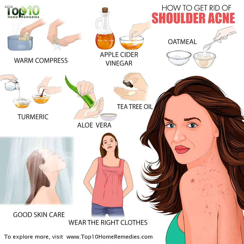 How To Get Rid Of Shoulder Acne Top 10 Home Remedies Shoulder Acne Home Remedies For Acne Skin Care Acne Pimples Overnight