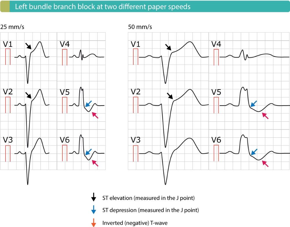 Stemi St Elevation Myocardial Infarction Diagnosis Criteria Ecg Management Ecg Learning Bundle Branch Block St Elevation Myocardial Infarction