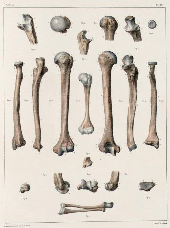 Humerus%2C+radius+and+ulna+of+an+adult+and+infant.jpg (572×766)