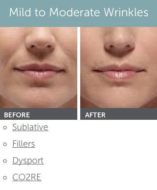Facial rejuvenation wyoming