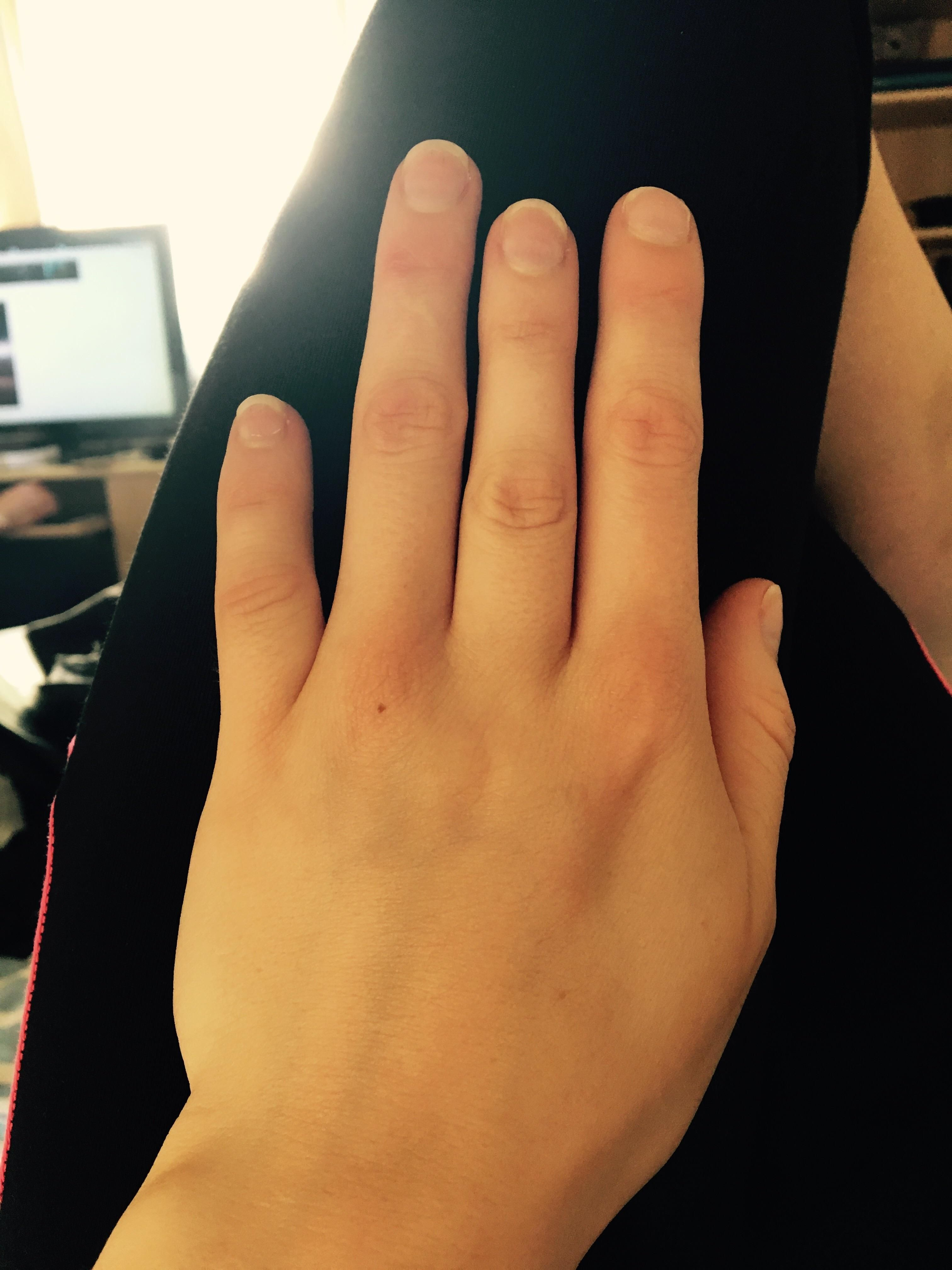 i have a short middle finger due to brachydactyly repin and follow, Skeleton