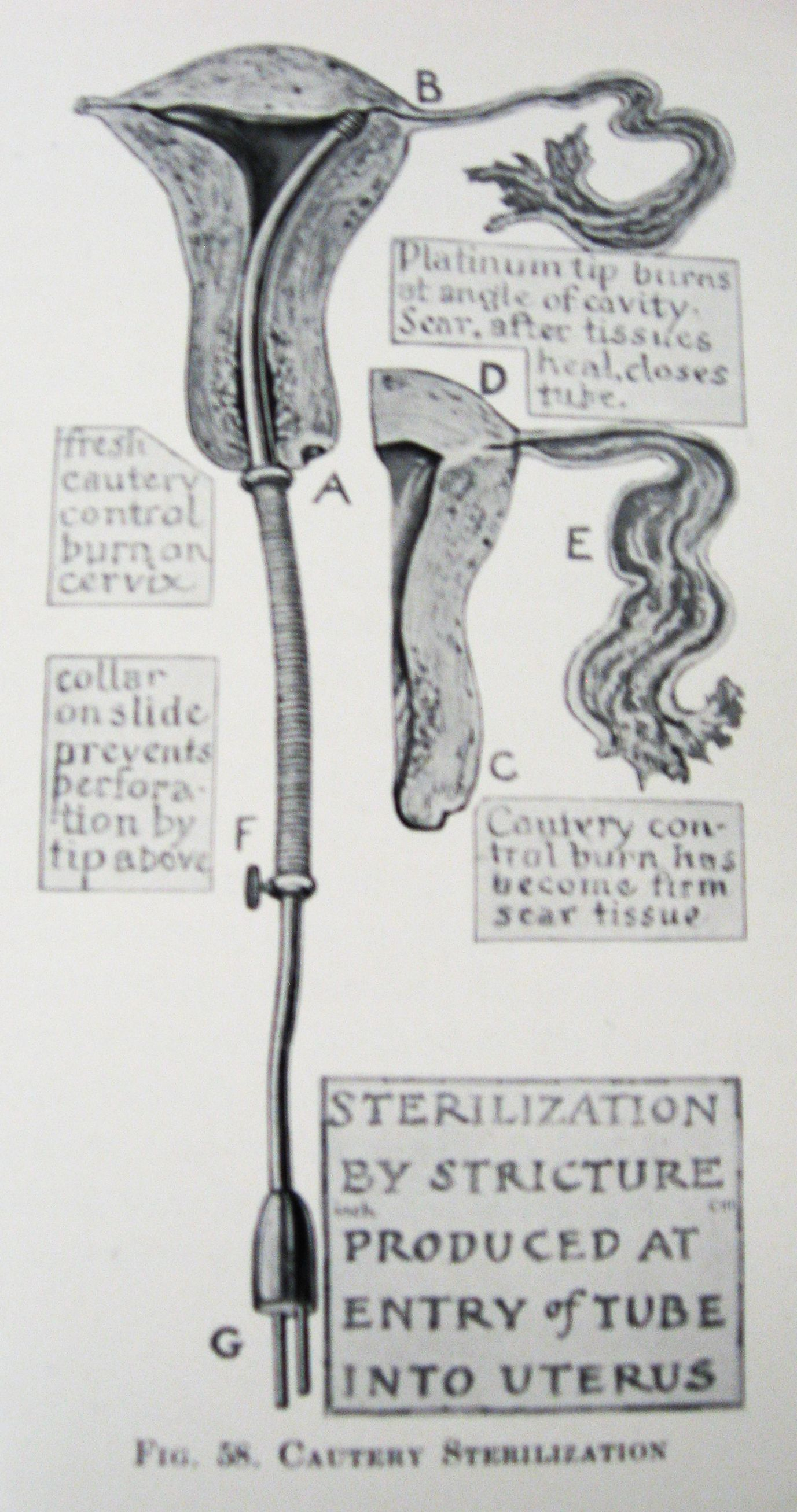 Control of conception an illustrated medical manual by robert control of conception an illustrated medical manual by robert latou dickinson and louise fandeluxe Gallery