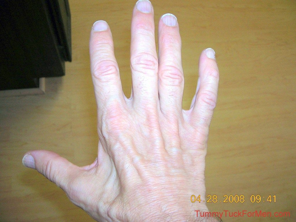 Ulnar nerve damage causes muscle atrophy in the hand (shown