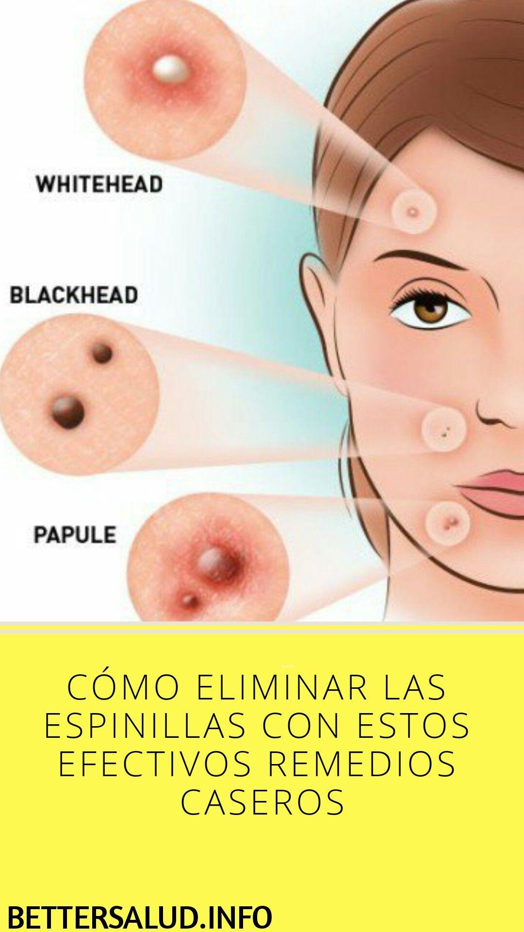 como quitar las espinillas en la cara con remedios caseros