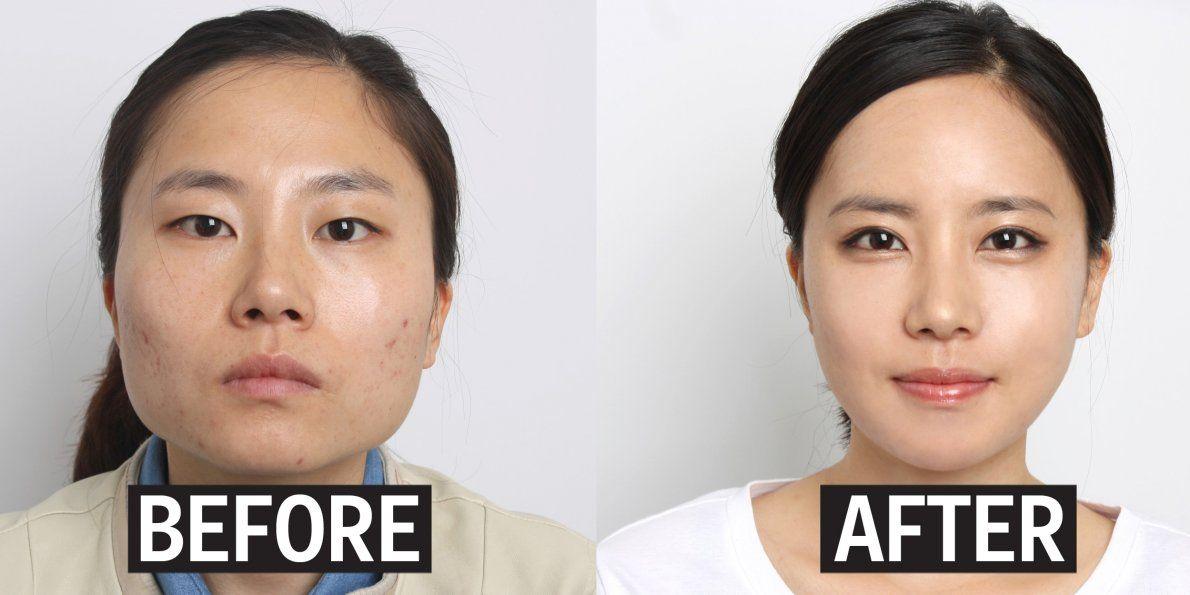 plastic surgery in korea essay