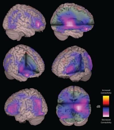 Imaging Technique Could Help Traumatic Brain Injury Patients Brain Injury Traumatic Brain Injury Brain Scan