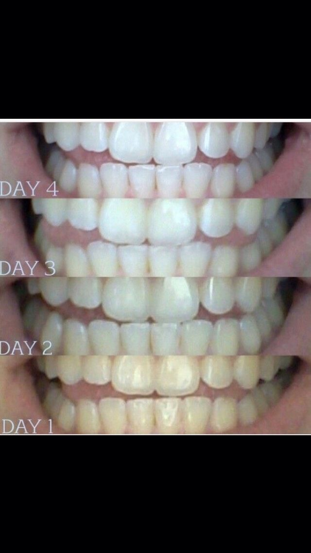 Get Whiter Teeth Beauty Tips Pinterest Cavity Pain Coconut
