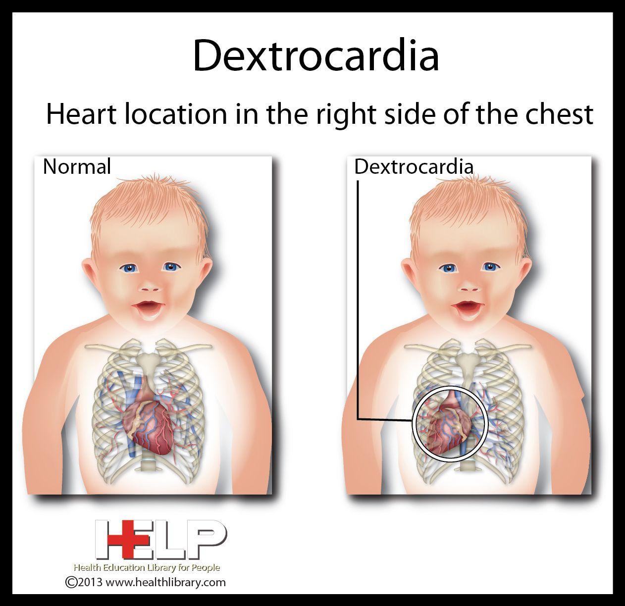 Dextrocardia heart pinterest situs inversus
