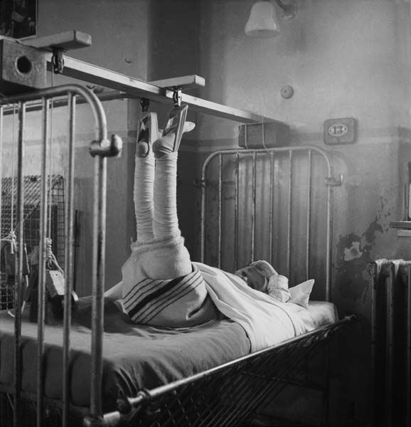 A young patient with her legs in plaster, Whittington Hospital London 1954