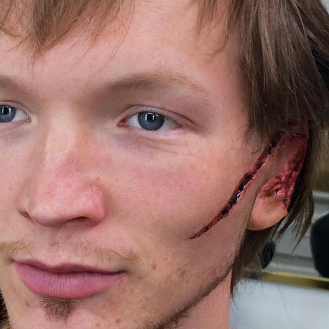 victim with a damaged ear from a recent episode of aquarius before final blood was