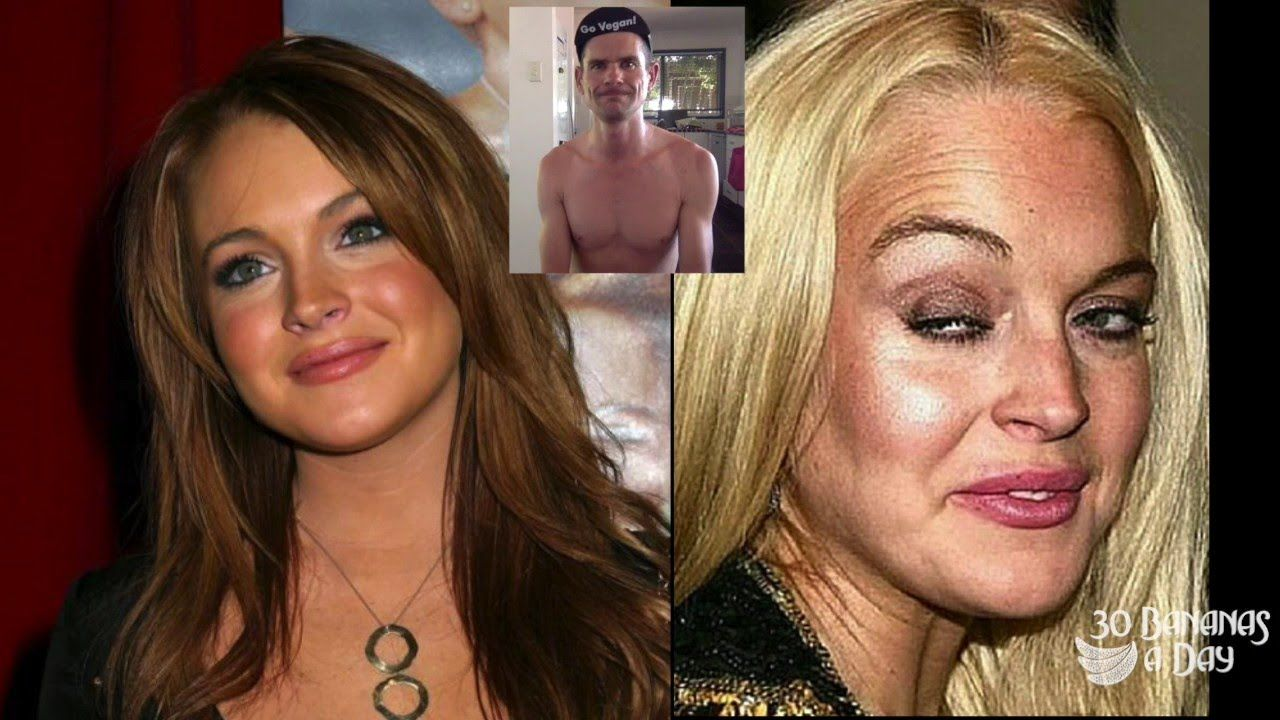 Celebrities Before After Drugs