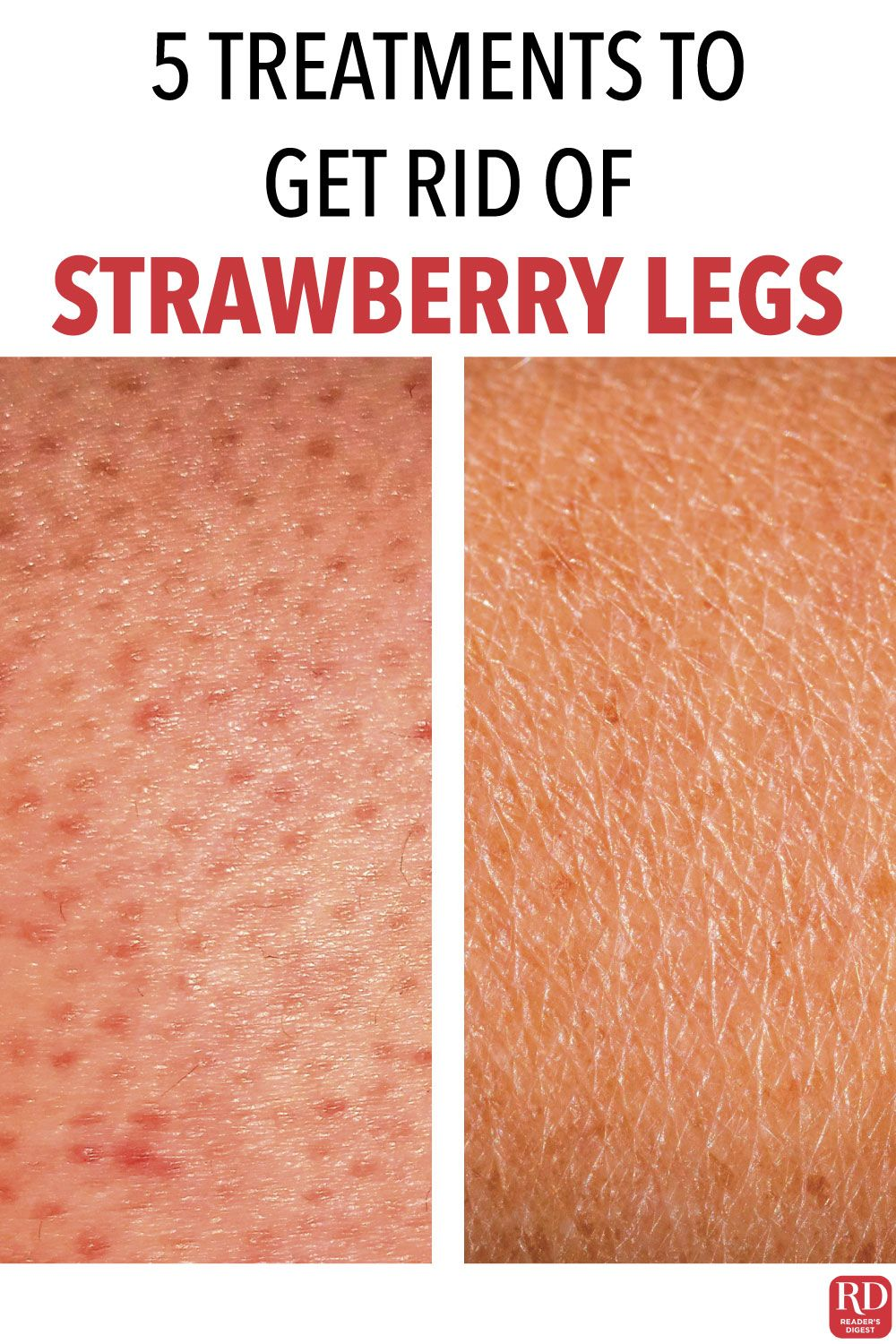2a64fd25f083889d2ec0e09f2379b829 - How To Get Rid Of Strawberry Spots On Legs