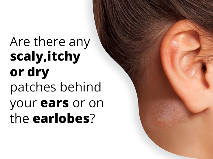 Eczema On Ear How To Get Rid Of Itchy Or Dry Ear Eczema In 2020 Dry Skin Treatment Dry Skin Remedies Treating Dry Skin