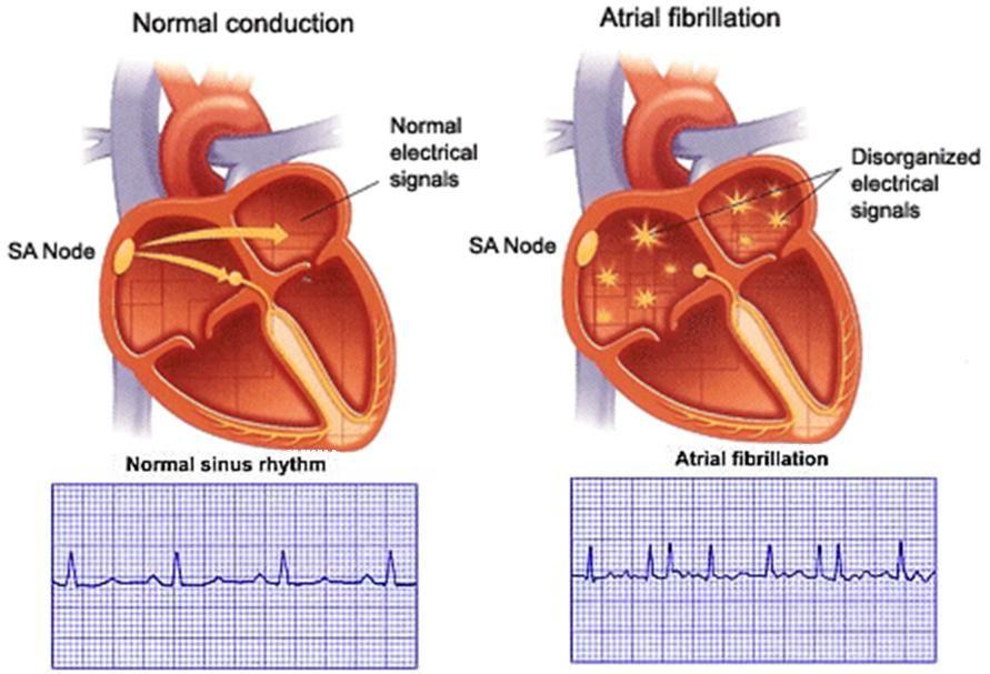 Pin On Cardiac Arrhythmias