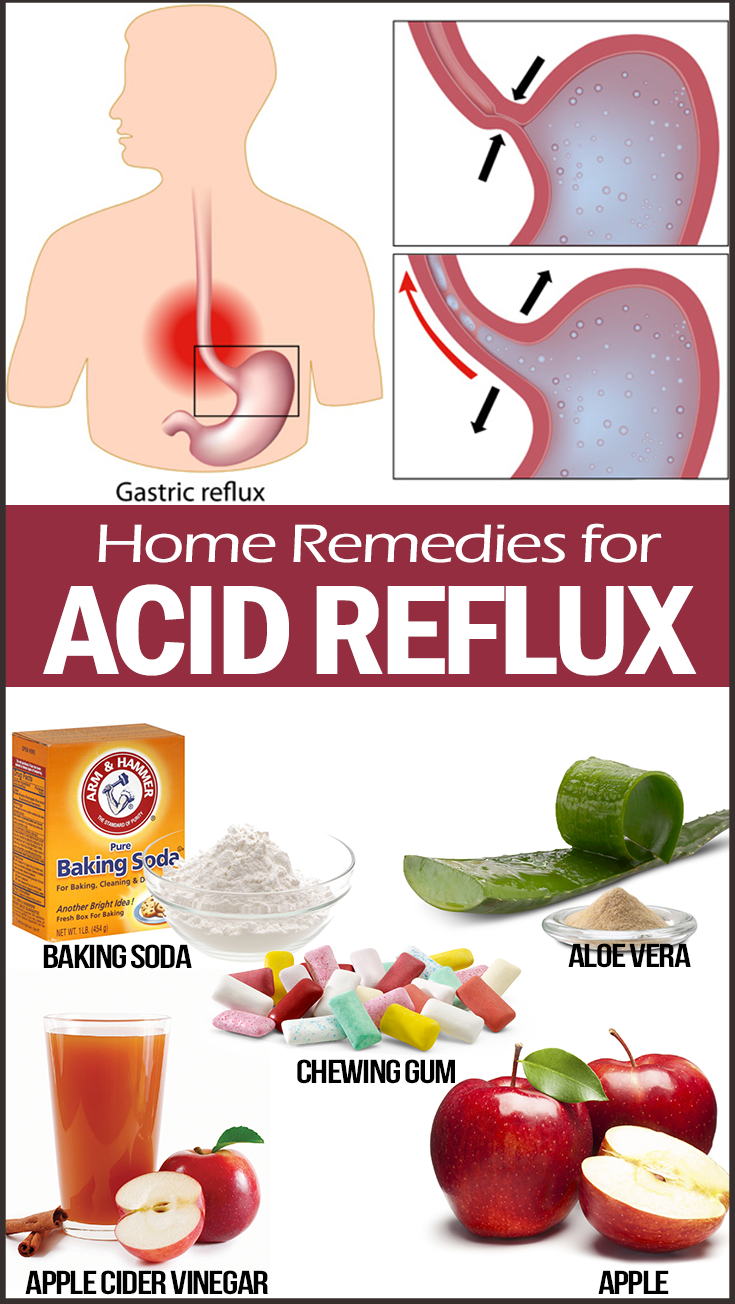 How To Naturally Cure Acid Reflux In Babies