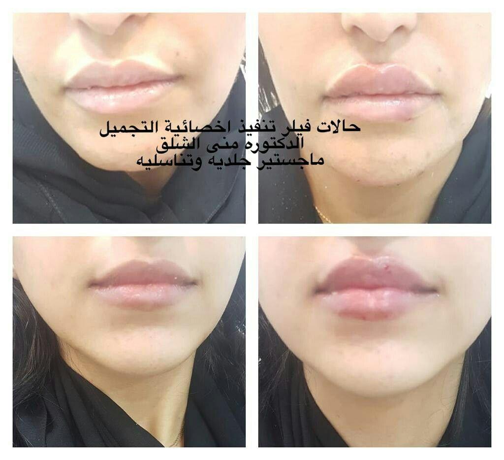 عيادة اروكا لطب الاسنان والجلدية شمال الرياض 0545359682 عيادة اسنان بالرياض عيادة جلدية بالرياض تنظيف اسنان تقويم اسنان ليزر Nose Nose Ring Septum Ring