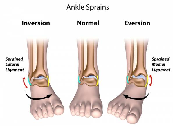 Full Guide: The 13 Exercises You Must Know For Sprained Ankle ...