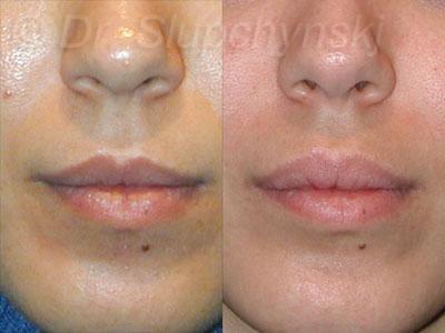 Perma facial implant austin