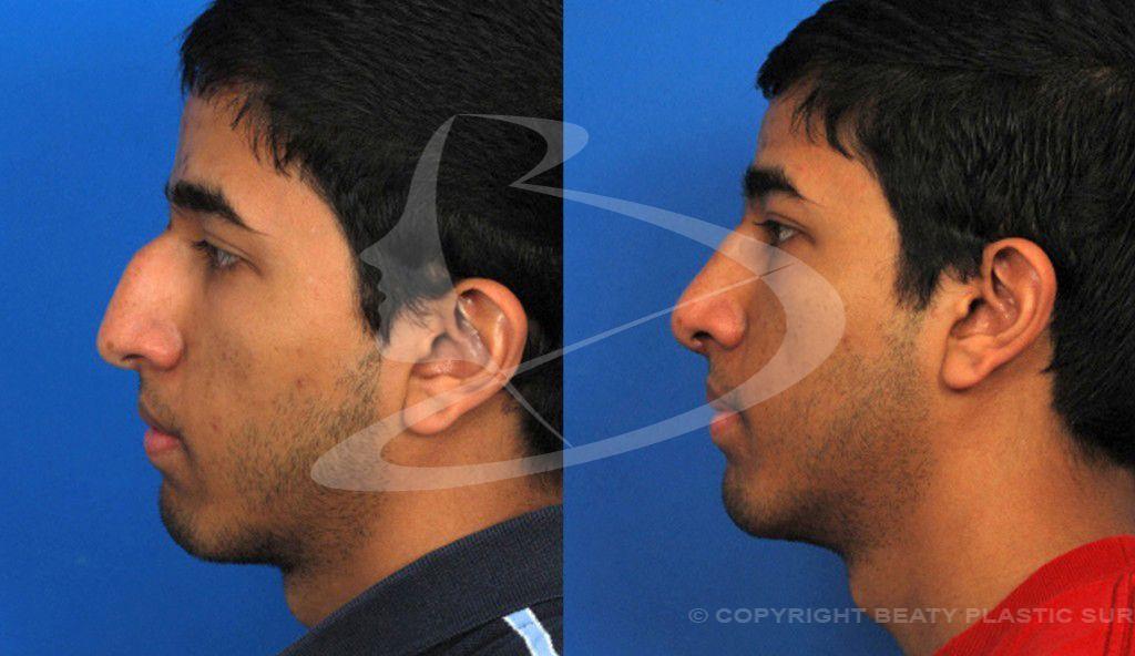 Rhinoplasty Atlanta Nose job, Rhinoplasty, Plastic surgery