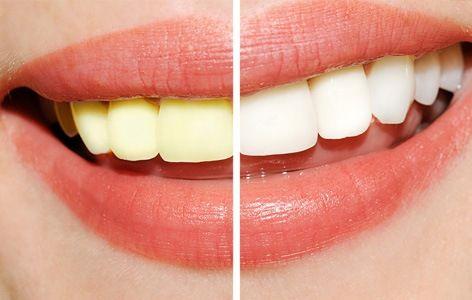 Image result for gleamy white smile