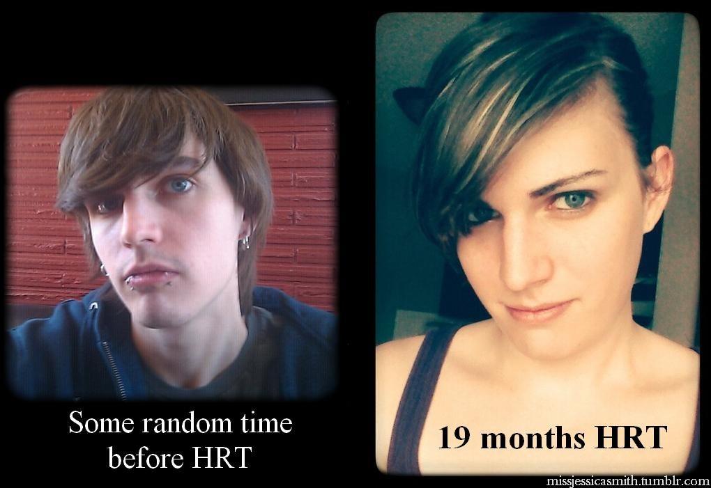 Female hormones transformation-7957