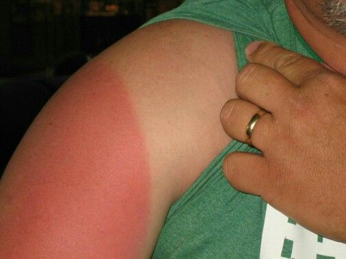 Bad sunburn gatesville dewayne76528