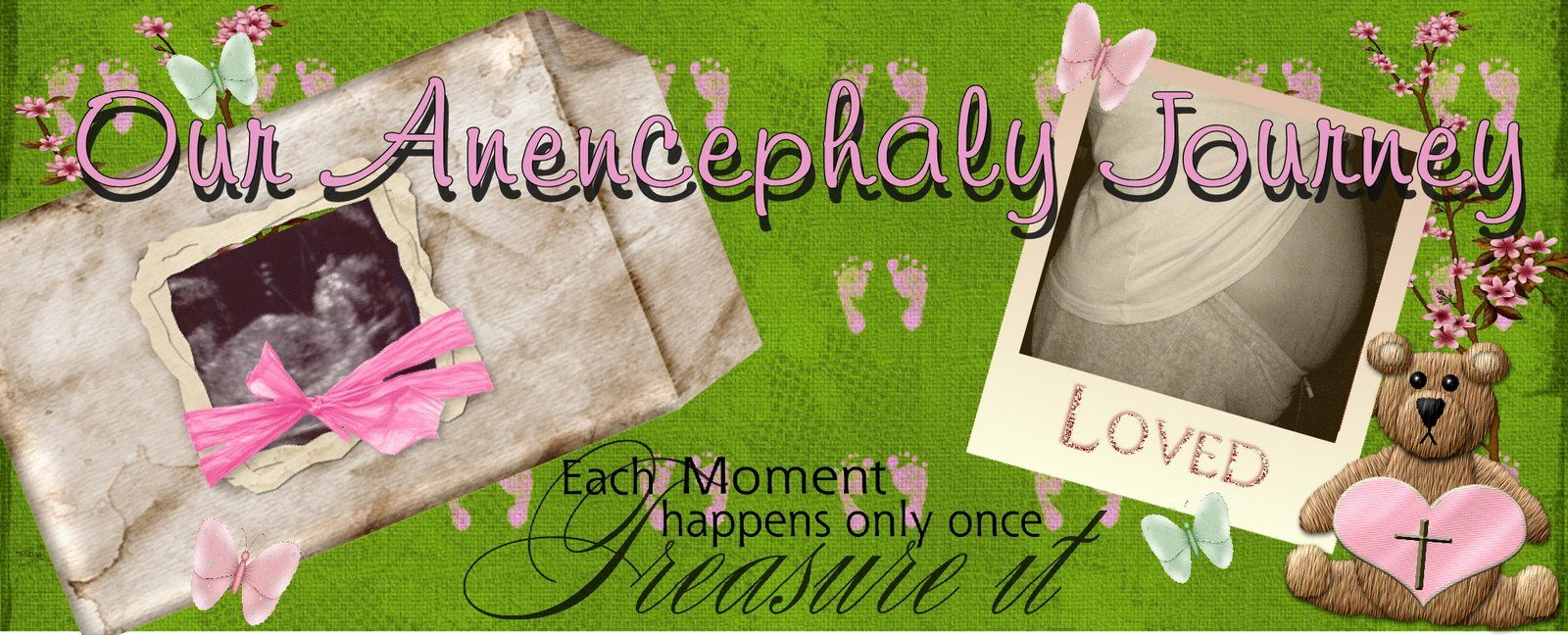 Our Anencephaly Journey   Supportive husband, Beautiful ...