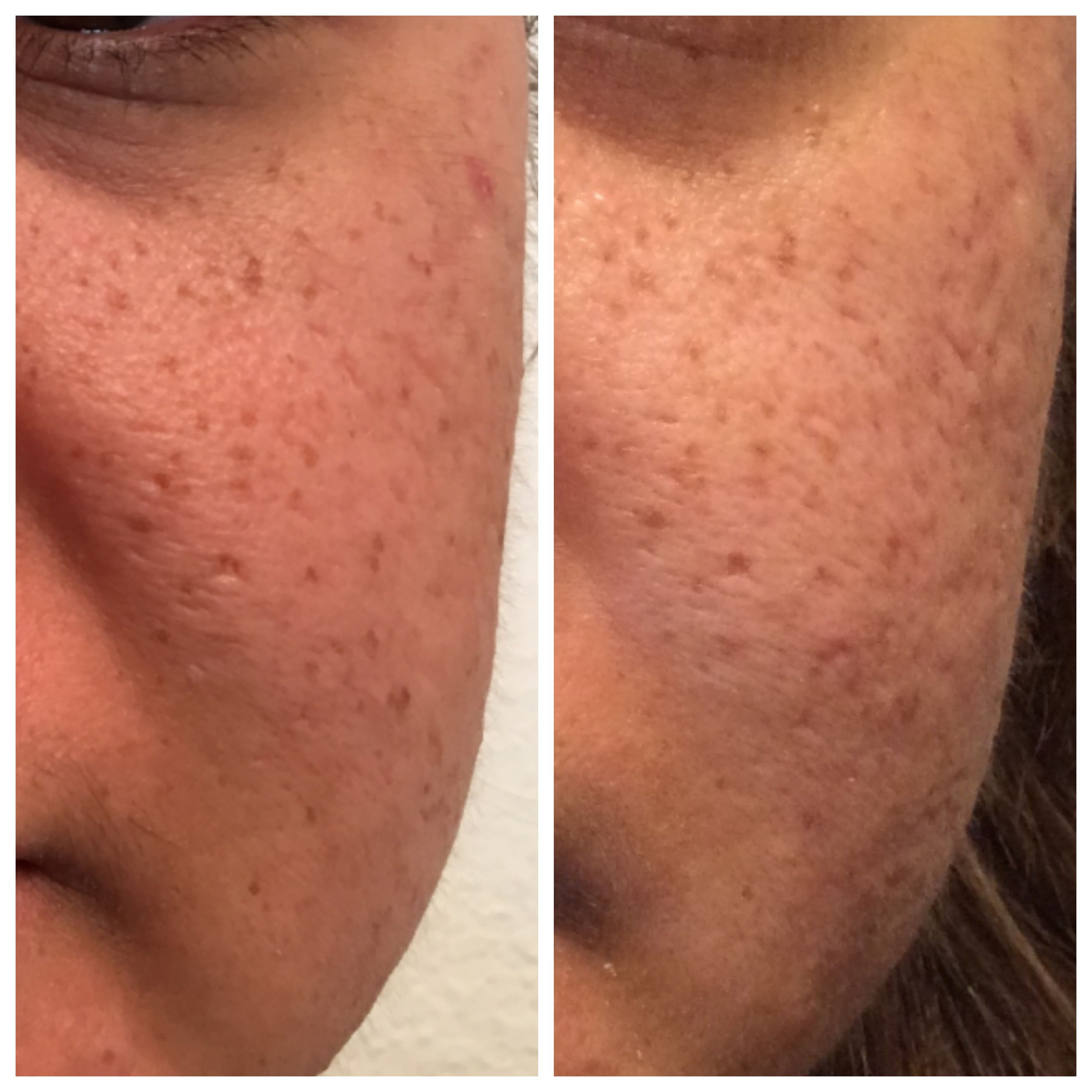 Stem cell for acne scars