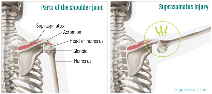 Shoulder Impingement during plank and downdog (incidentally this ...