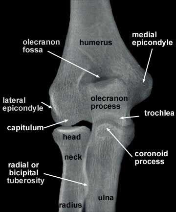epicondyle | Medial epicondyle of the humerus - Wikipedia ...