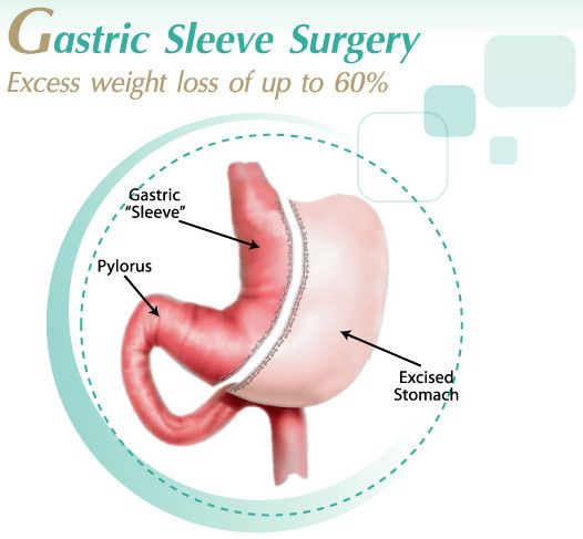 How Much Does Gastric Sleeve Surgery Cost In Mexico Weight Loss