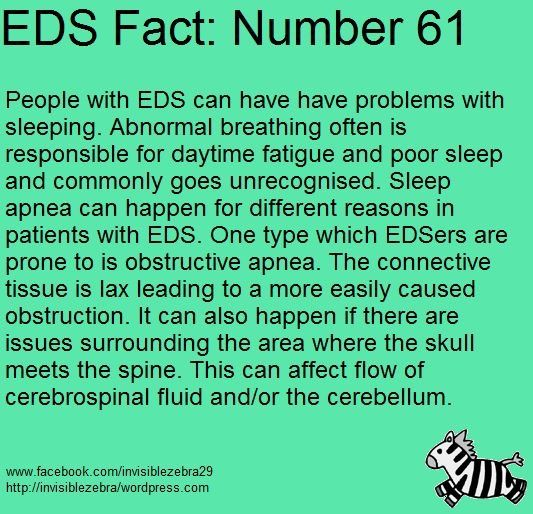 I Need To Be Checked For This I M Hardly Ever A Ehlers Danlos