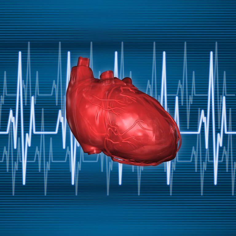 sistema electrico corazon, que es la fibrilacion auricular ...