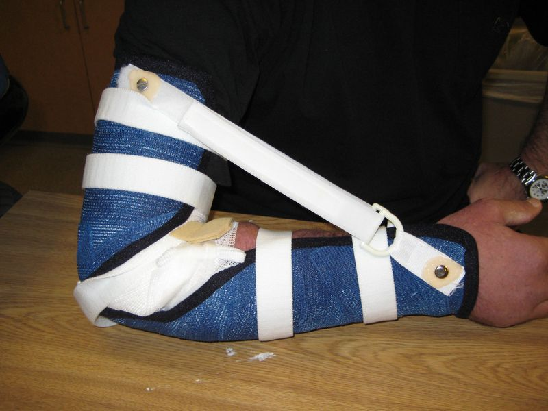 Static Progressive Elbow Flexion Splint Ot Splints And