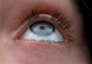 2f923592802 Stop hair and eyelash pulling-Trichotillomania ...okay so I have a MILD  disorder, (not as bad as the picture) but this person's story sounds closer  to mine ...