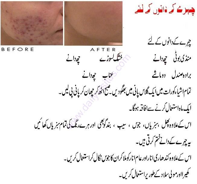 Pimple Tips In Urdu Want Pimples And Acne Gone Fast Try