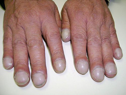 Drumstick Finger Or Clubbed Finger Is A Deformity Of The Fingers