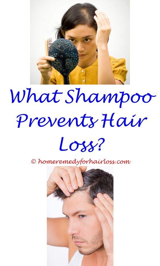 Hair Loss And Causes | Male hair loss, Hair loss and Male hair