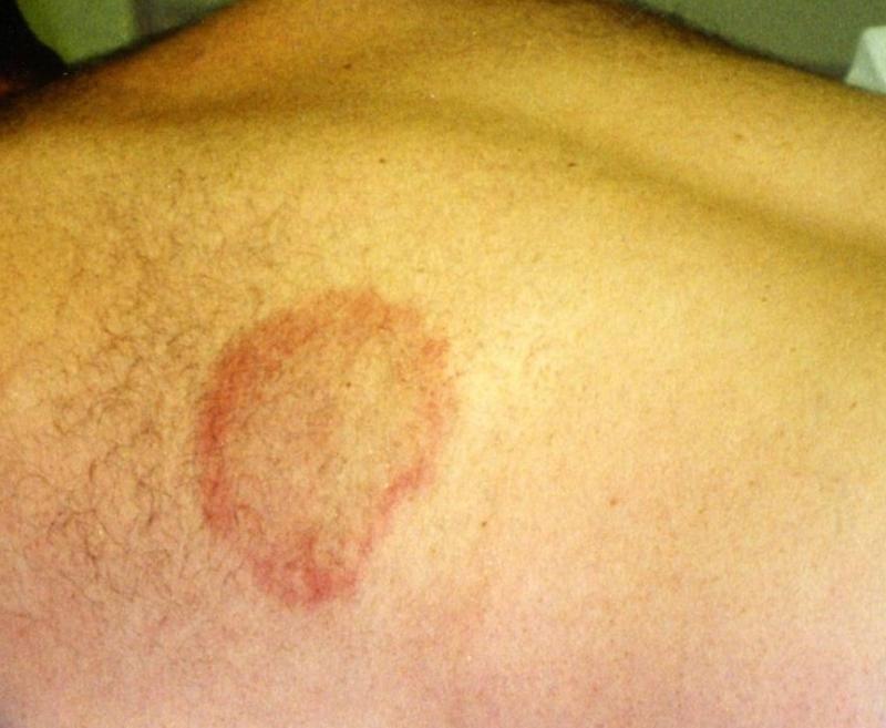 Liver disease skin symptoms rashes etc pinterest