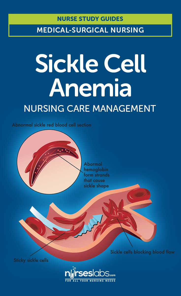 Sickle Cell Anemia   Nursing School and Study Guides