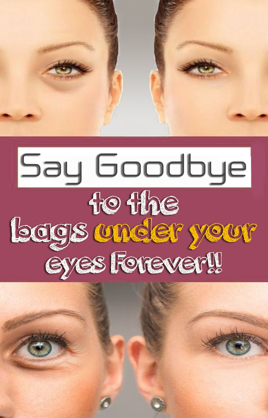 How To Get Rid Of Puffy Eyes From No Sleep