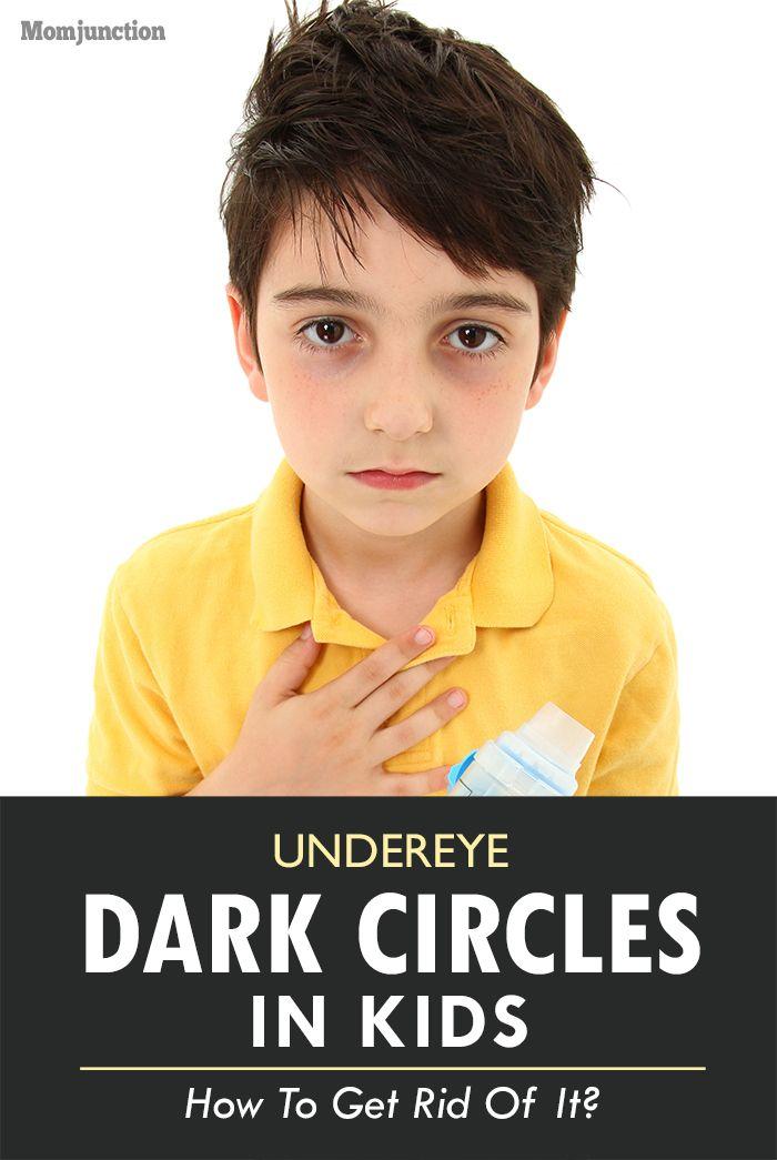 How To Get Rid Of Dark Circles Under Eyes In Children ...