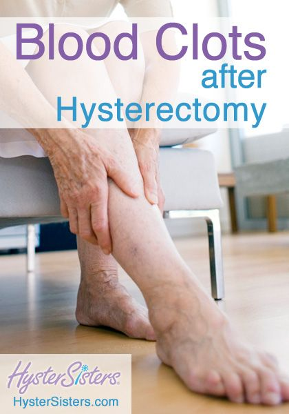 Hysterectomy scar itching