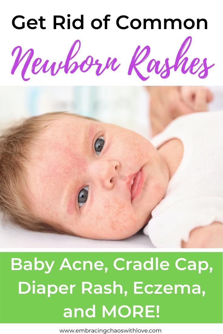 Natural Remedy For Common Newborn Rashes Baby Acne Newborn Rash Baby Rash
